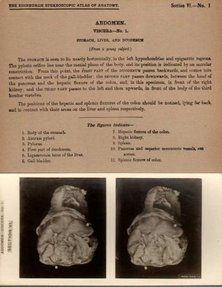 Stereoscopic Studies of Anatomy; Prepared under authority of the University of Edinburgh [Section VI Viscera | Perineum